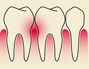Gum Disease and its effect on you