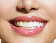Dental Implants: Do They Discolor Over Time?