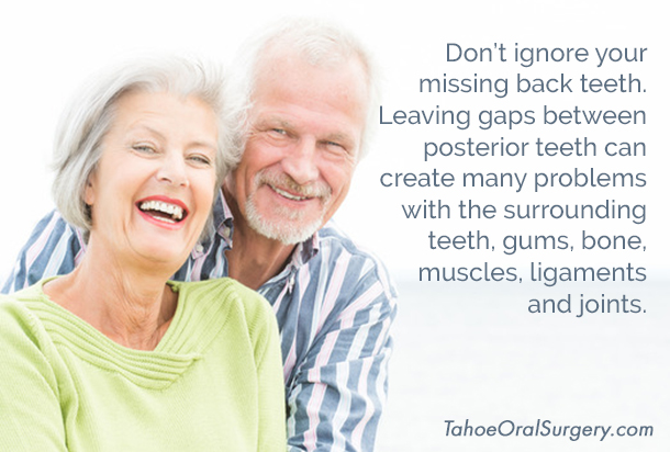 TahoeDentalImplants-blogposts-1501-missingbackteeth