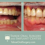 TahoeOralSurgery-BeforeAfter-1603-1