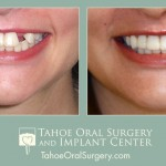 TahoeOralSurgery-BeforeAfter-1603-2