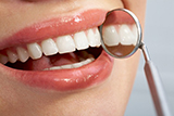 How much do dental implants cost