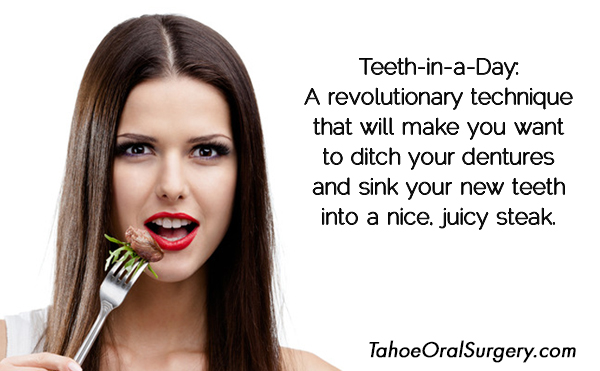 reno-teeth-in-a-day-and-lake-tahoe-oral-surgeon-tips