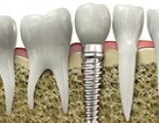 Common Questions about Dental Implants