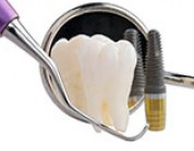 Why There's No Need To Worry About Dental Implant Surgery