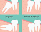 What is an impacted tooth and how is it treated?