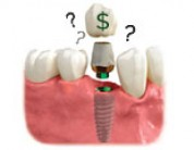 How Much Do Dental Implants Cost In Truckee/Tahoe?