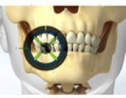 Advanced Technology Makes Dental Implants Safer Than Ever