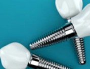Eight Things to Know Before Getting Dental Implants – Dental Implant FAQs