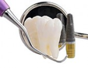Top 10 reasons to get dental implants versus other treatment options