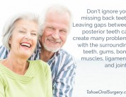 Don't Ignore Missing Back Teeth